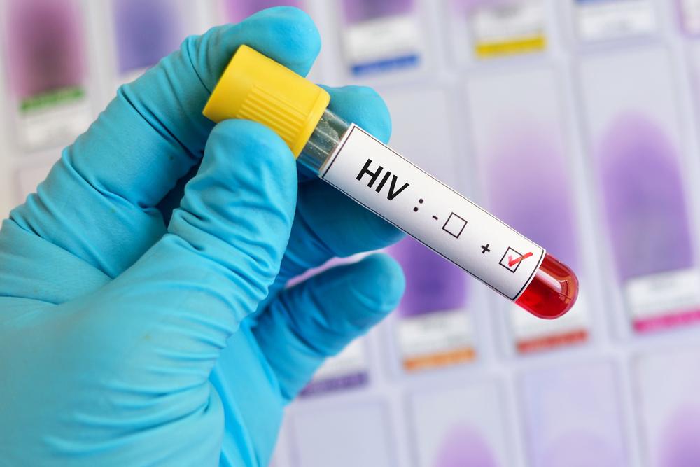 Тест на ВИЧ должен пройти каждый